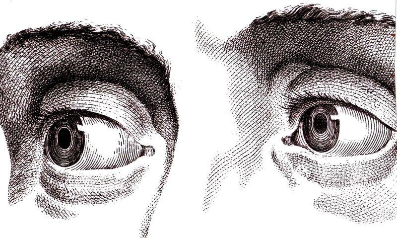Blick kontakt